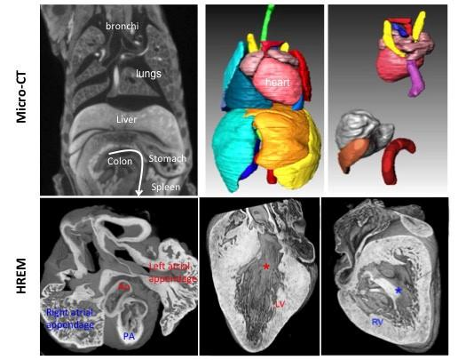Multiscale 3D imaging_SMeilhac